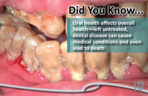 poor oral health can lead to death-cover